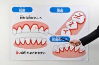 歯列シート